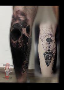 Cover Up o Rimozione Laser tatuaggio